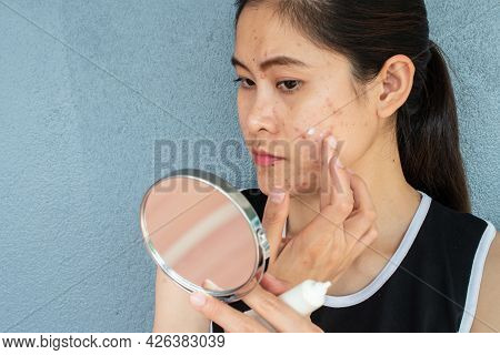 Portrait Of Asian Woman Worry About Her Face When She Saw The Problem Of Acne Inflammation And Scar