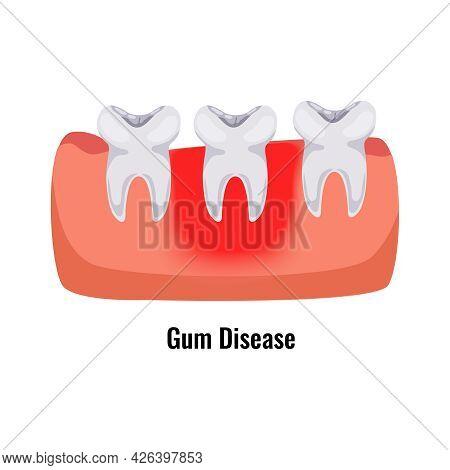 Dental Oral Problems Flat Poster With Gum Disease Vector Illustration