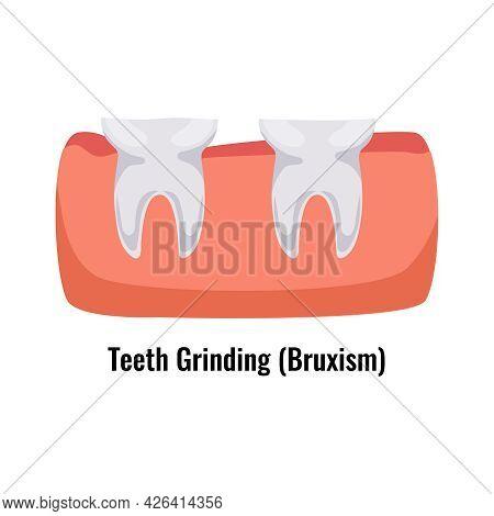Dental Oral Problem Poster With Bruxism Teeth Grinding Flat Vector Illustration