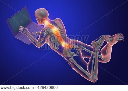 Working With Laptop In A Wrong Position. Concept Of Backache, Back Pain
