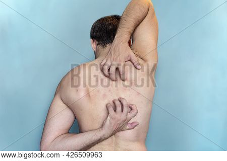 Man Scratching His Back On Blue Background. A Man Scratches The Skin On His Back. Itching On The Bac