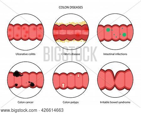 Inflammatory Bowel Disease, Colon Cancer And Polyps. Inflammation Of The Digestive System. Intestina