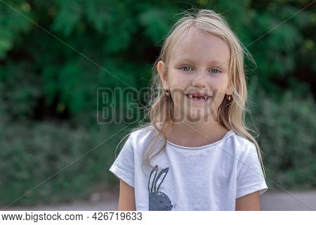 Portrait Of A Girl, A Preschooler With Blond Hair Without Upper Teeth, In The Park, A Charming Child