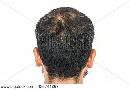 Back View Of Men's Head With Thin Hair And Grey Hair Growing. Conceptual Of Hair Problem On Men's He