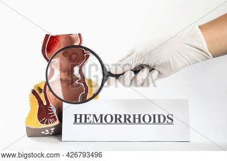 Proctologist Holding Magnifying Glass Near Anatomical Model Of Rectum With Hemorrhoids Isolated On W