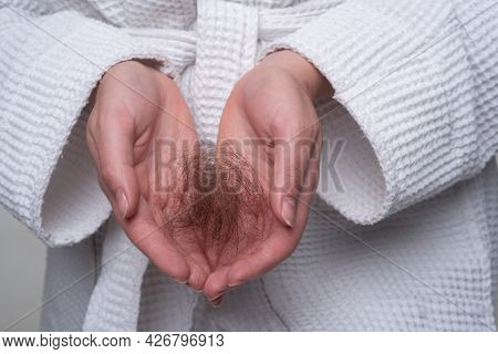 Hair Loss. Problem Hair In Hand, Isolated. Damaged Unhealthy Hair In Hand Closeup.