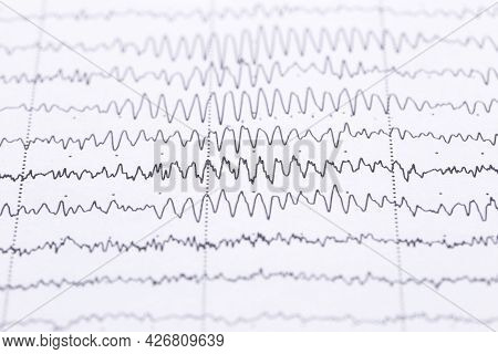Cardiogram On A Sheet Of Paper Close-up. Texture Of Pulsed Waves.