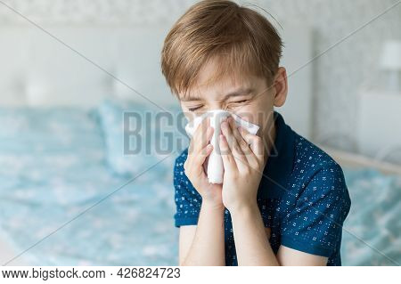 Caucasian Boy Suffers From A Runny Nose And Allergic Reactions To Pollen. Colds Viral Diseases In Ch