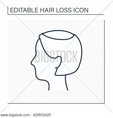 Hair Loss Line Icon. Woman Loses Hair. Thin, See-through Look On Top Of Scalp. Hair Thinning In Vert