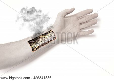 Robot Hand Inside Human Hand - Prosthesis Concept, Short Cirquit, Isolated On White