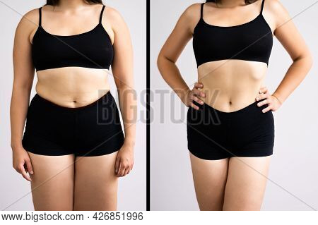 Woman Before And After Weight Loss On Gray Background. Body Shape Was Altered During Retouching