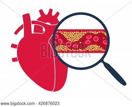 Cholesterol In Human Blood Vessels And Heart Logo. Fat Cells In Vein Arteries. High Ldl And Hdl Leve