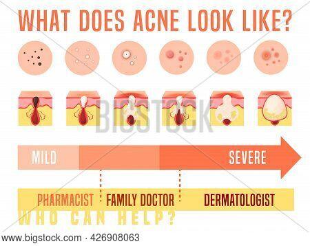 Acne Types Set. Skin Disease, Dermatology, Cosmetology Concept.