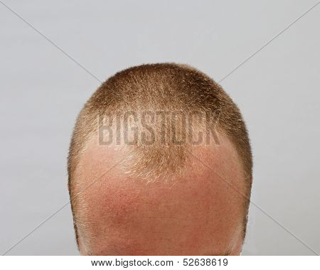 Balding White Man