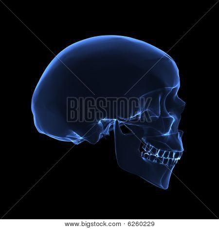 X Ray Skull
