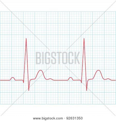 Medical Electrocardiogram - Ecg On Grid