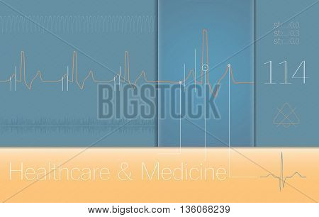 ECG complexes on Medical monitor screen. Medical illustration
