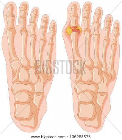 Diagram of gout in human toe illustration