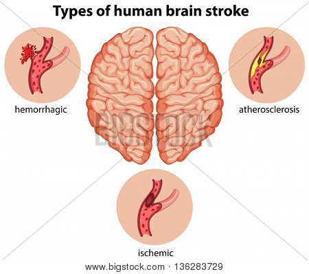 Types of human brain stroke illustration