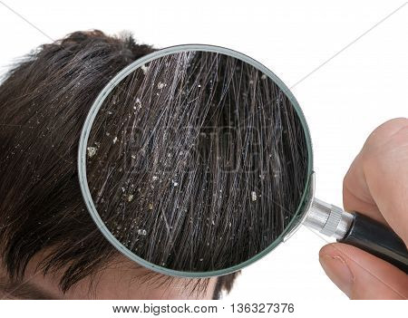 Examiming White Dandruff Flakes In Hair With Magnifying Glass.