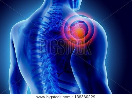 3D Illustration Of Shoulder Painful.