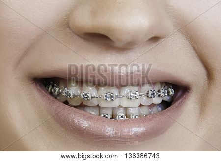 girl smiles with braces on teeth close up