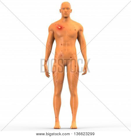 3D Illustration of Human Muscle Body with Disease