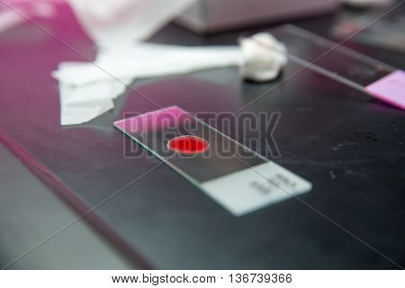 Close-up detail of a drop of blood on a microscopic slide used for screening and testing. Healthcare and medicine concept.