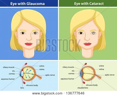 Comparison chart of eyes with and without glaucoma illustration