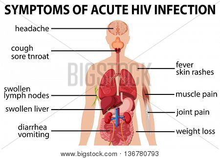 Chart of symtoms of acute HIV infection illustration