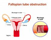 Fallopian tube obstruction or Blocked fallopian tubes. A major cause of female infertility. Uterus and uterine tubes. Human anatomy. female reproductive system. Vector diagram. poster