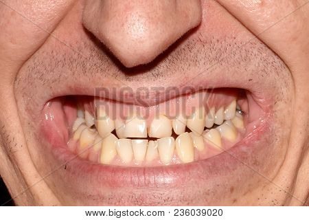 Mouth Of Man With Crooked Yellow Overlap, Crowding Teeth Close-up, Decayed Tooth. Not Correct, Broke