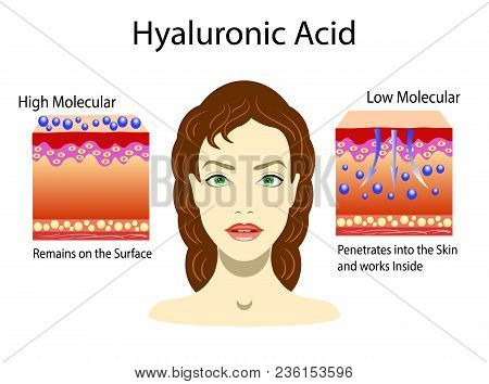 Vector illustration with Hyaluronic acid in skin-care products. Low molecular and High molecular and portret of girl poster