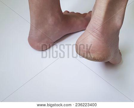 Cracks On Heels On A White Background