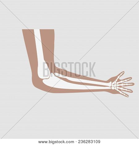 Hand Of Man In The Elbow And Wrist Joints