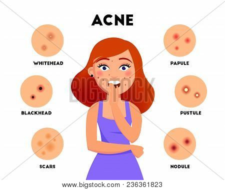 Acne Types Infographic Elements Vector Flat Illustration. Girl With Acne On Face And Different Skin