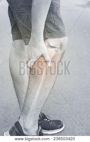 Leg Bones Pain White Background Knee Injury