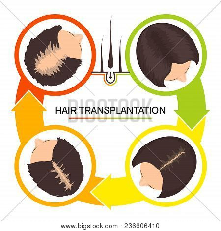Hair Transplantation Surgery 4 Steps Infographics. Woman Patient Before And After The Procedure. Fem