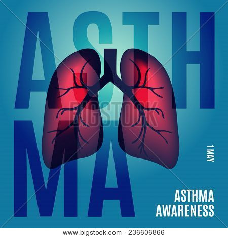 Asthma Awareness Poster With Lungs On Blue Background. Bronchial Disease Symbol. Medical Template Fo