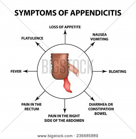 Symptoms Of Appendicitis. Inflammation Of The Appendix. Infographics. Vector Illustration On Isolate