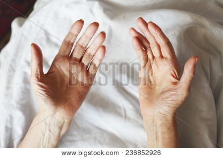 Old Hands On A White Background. Grandmother In Bed.
