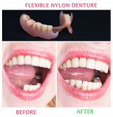 Dental rehabilitation with lower flexible nylon denture, before and after treatment. Removable dentures flexible, devoid of nylon, hypoallergenic exempt from monomer poster