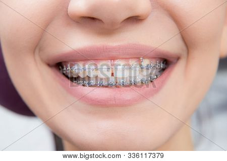 Smiling Happy Woman Mouth With Tongue And Braces. Orthodontics Occlusion Correction In Dentistry