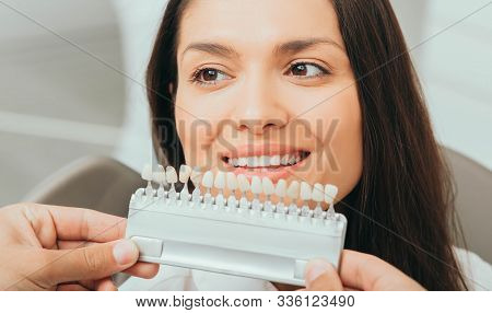 Teeth Palette With Different Shades Of Teeth Near Female Smiling. Stomatology, Whitening Teeth, Toot