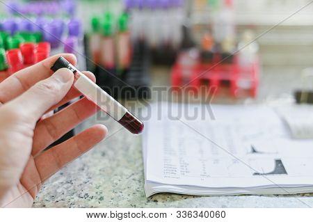Hand Holding Blood Tube , Medical Equipment Blood Test Tube Colse Up