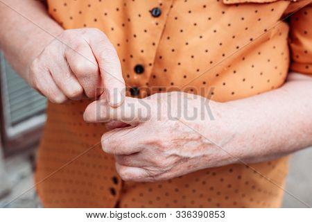 Older Woman Hands. Rheumatism, Arthritis, Joint Pain