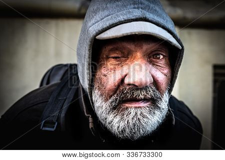 Homeless Man, Close Up Portrait Of Old Homeless Alcoholic One Eye Man Face With White Beard And Hair