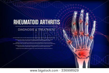Rheumatoid Arthritis Or Osteoarthritis Banner Sore Inflammation Joints Of Hand Bones. Anatomy Of Joi