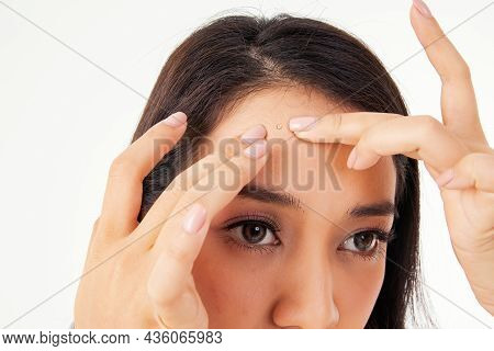 Concept Asian Girls Have Acne : Closeup Face Asian Woman Squeezing Acne, Having Inflammation And Pus