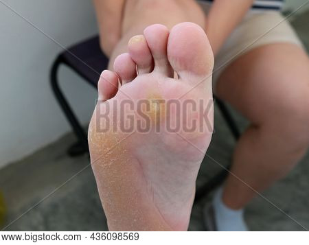 Showing A Raised Leg By A Patient With Skin Problems, Calluses And Corns On The Foot And Toes Of A W